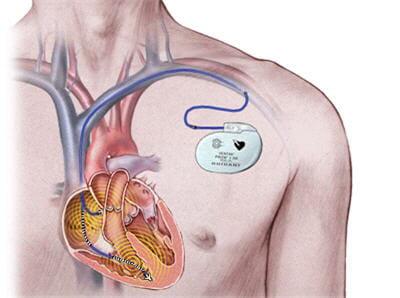 système de pacemaker