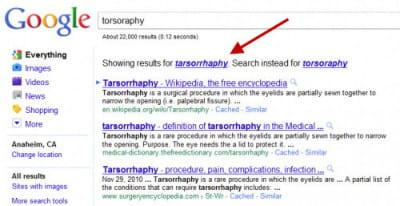 les résultat de la requête 'tarsorrhaphie'tapée dans google.