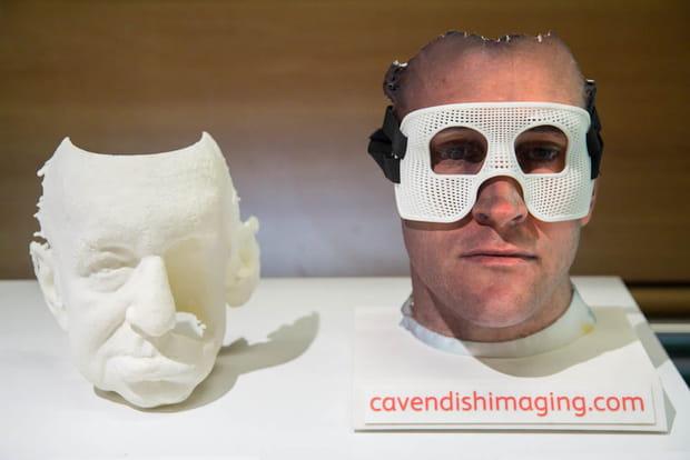 Prothèses médicales