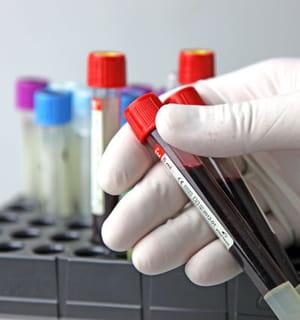 defymed offre une alternative au traitement classique du diabète.