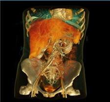 l'imagerie médicale, en 3d, très convaincante