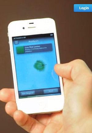 skinvision permet de détecter le plus tôt possible les mélanomes.