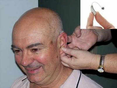 des prothèses auditives avec port mini-jack